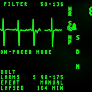 ECG-EKG